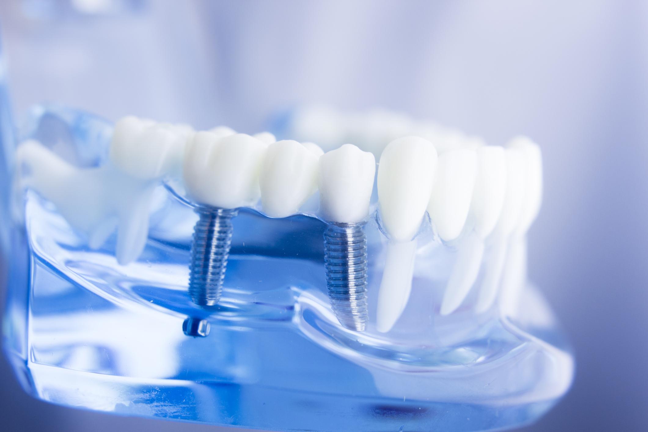Expertos en Implantología oral